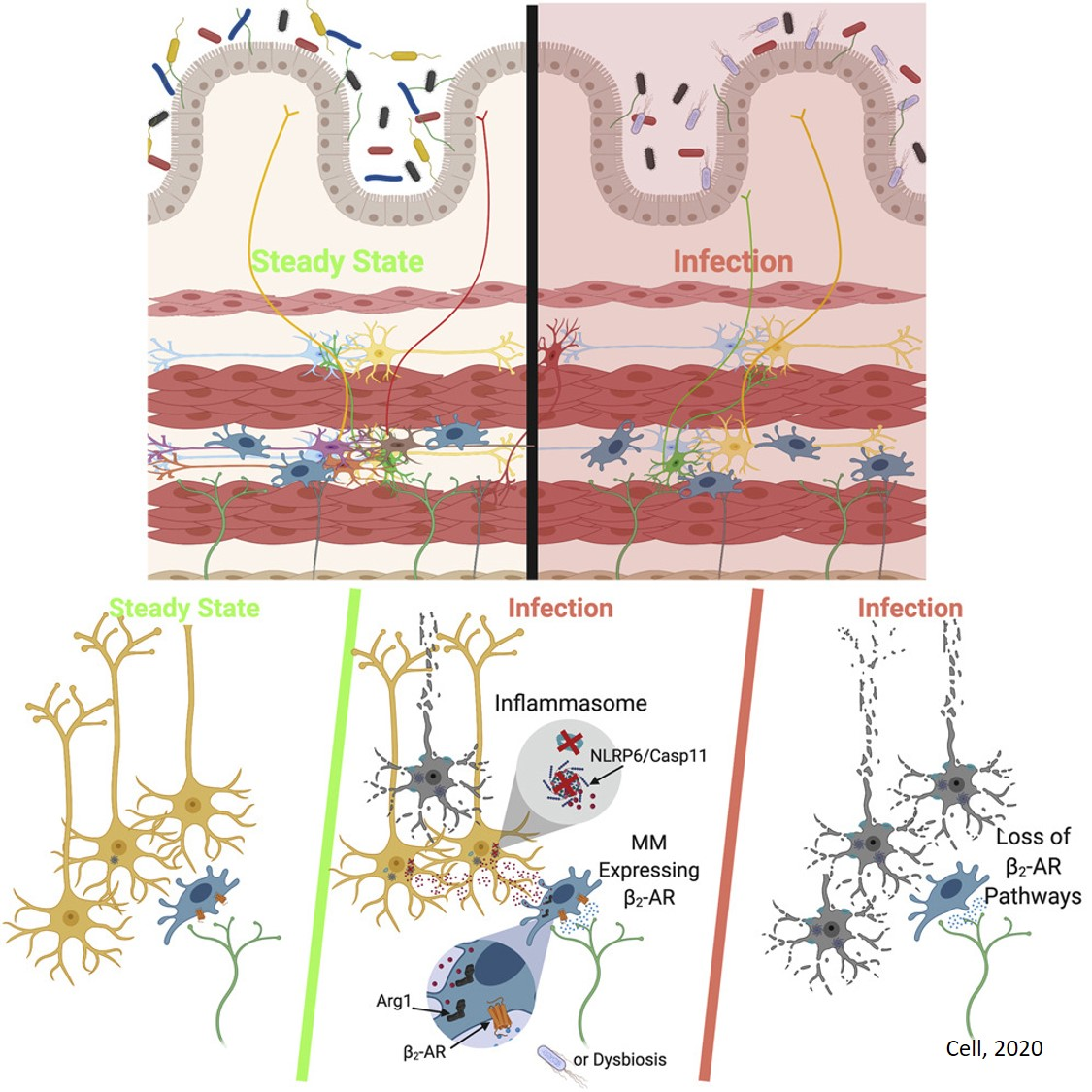 How a gut infection may produce neuronal loss and chronic symptoms