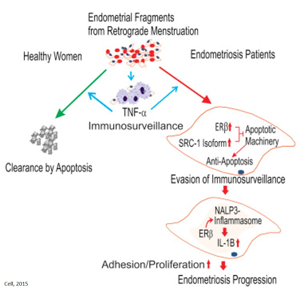 How estrogen receptor drives the pathogenesis of endometriosis