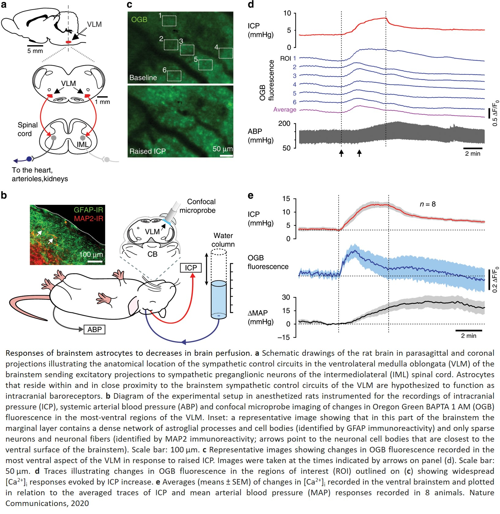 Astrocytes as new regulators of blood supply to the brain