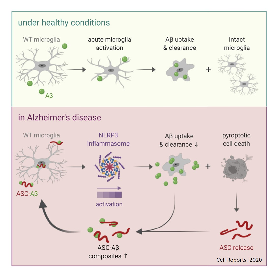 How inflammation triggers fatal cycle in Alzheimer's disease