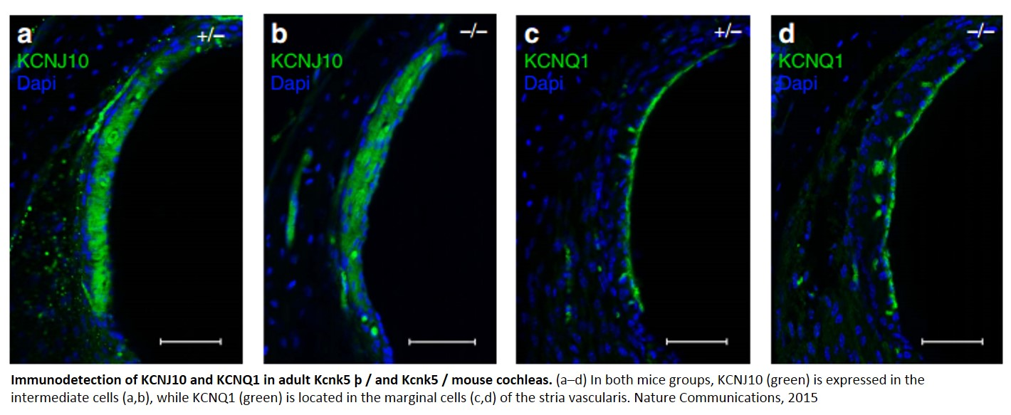 KCNK5 potassium channels are required for hearing