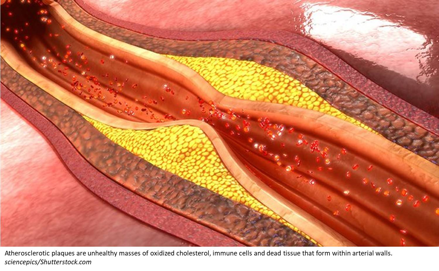 Unregulated smooth muscle cell growth may drive atherosclerosis