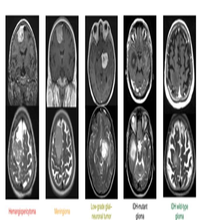 Diagnosing brain tumors with a blood test