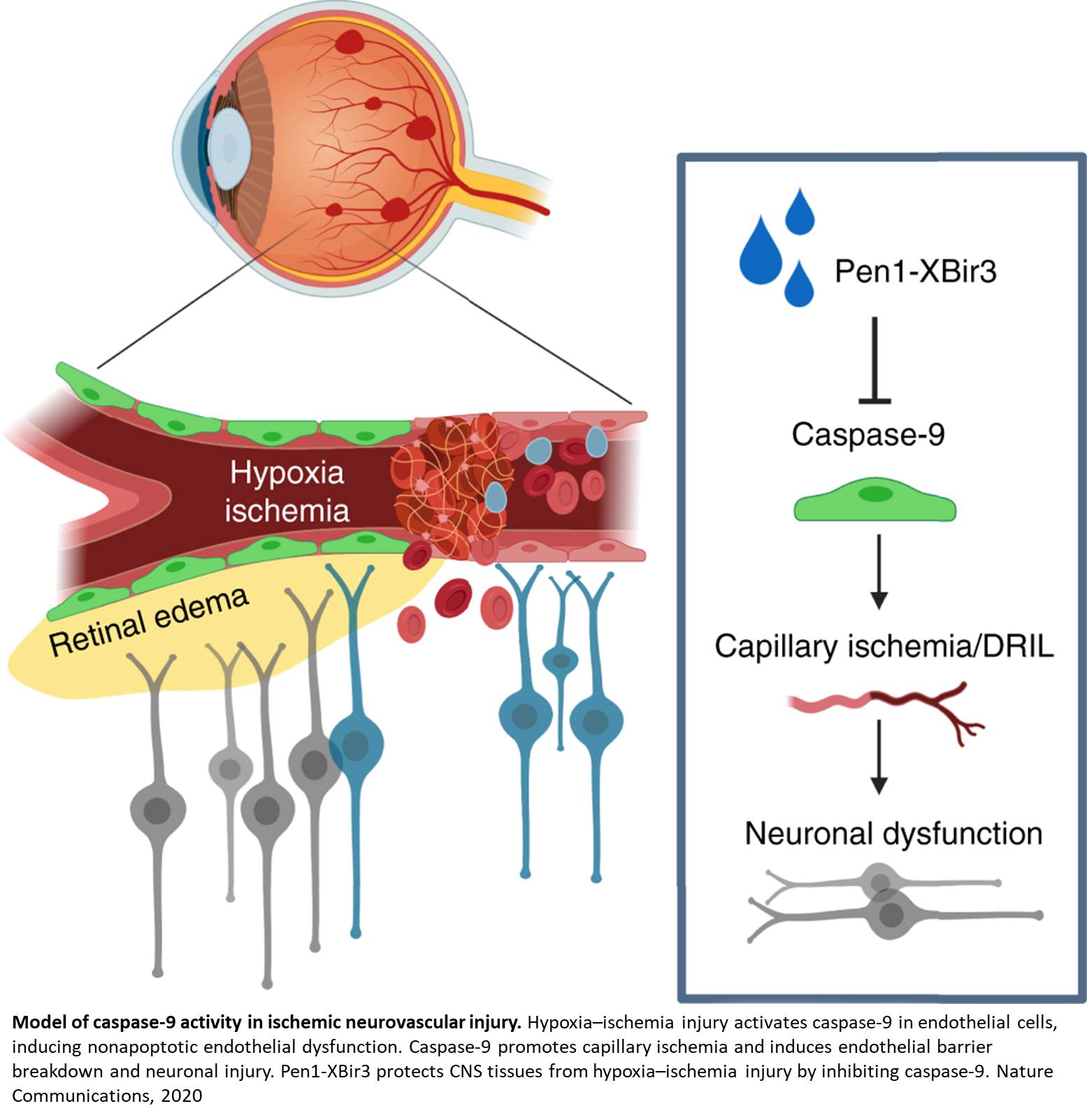 Eye drops with caspase-9 inhibitor prevents a common cause of blindness