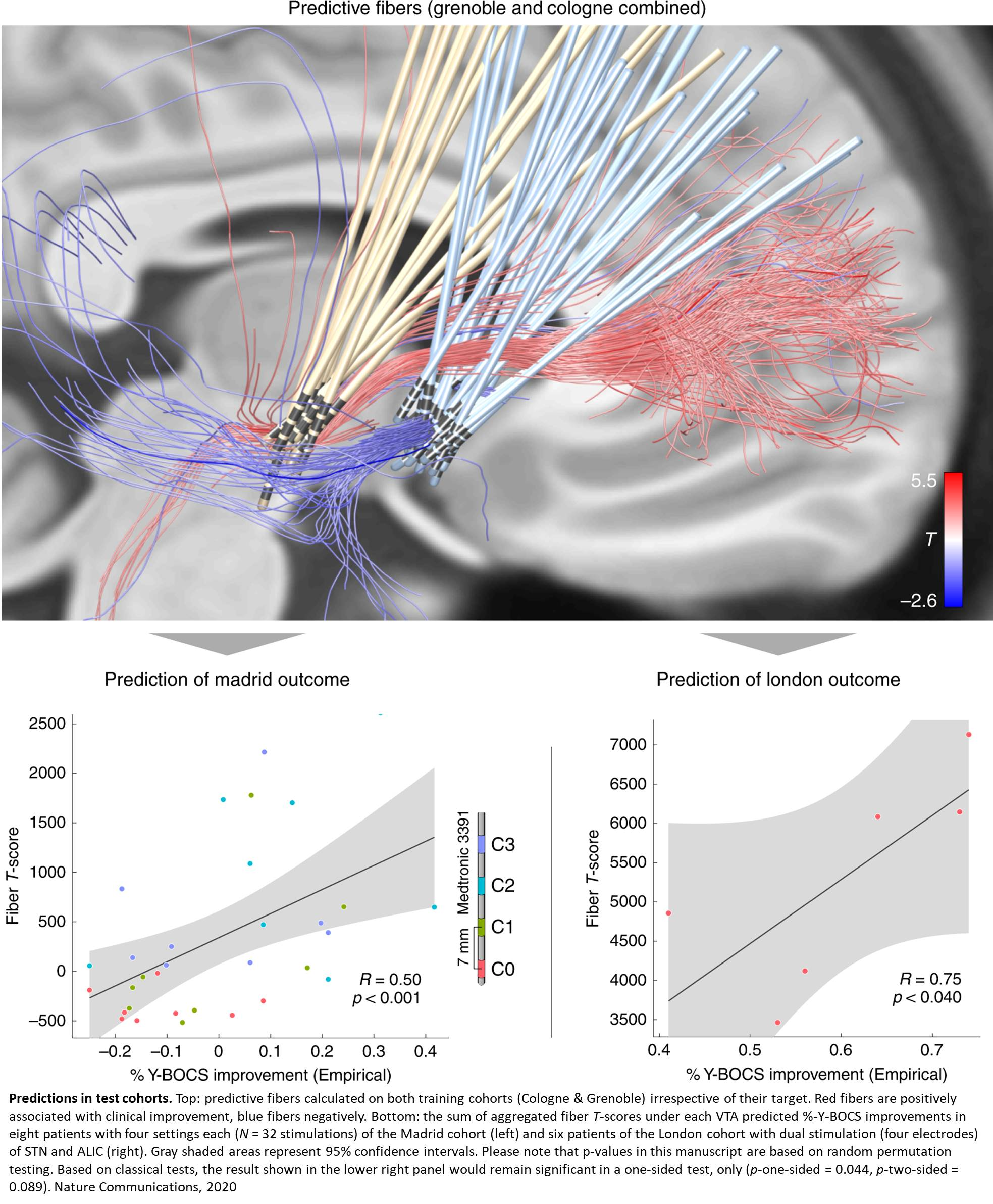 Precise connectomic targeting of deep brain stimulation to treat obsessive-compulsive disorder