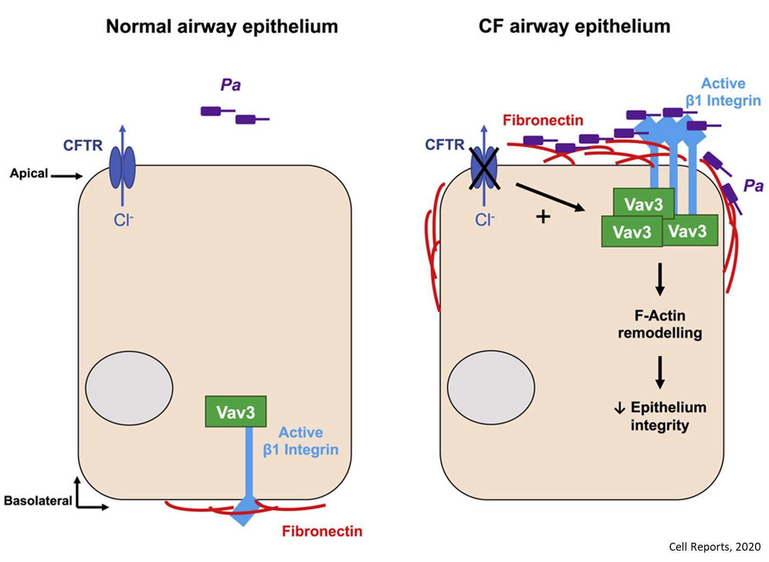 How Pseudomonas aeruginosa infects airway cells in cystic fibrosis?