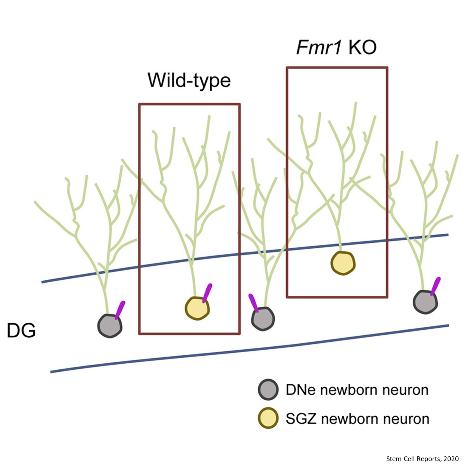 Fragile X syndrome neurons lack cilia!