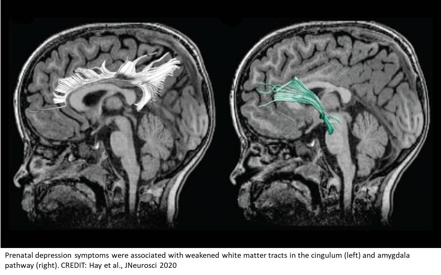 Childs white matter connectivity and behavior altered following prenatal depression