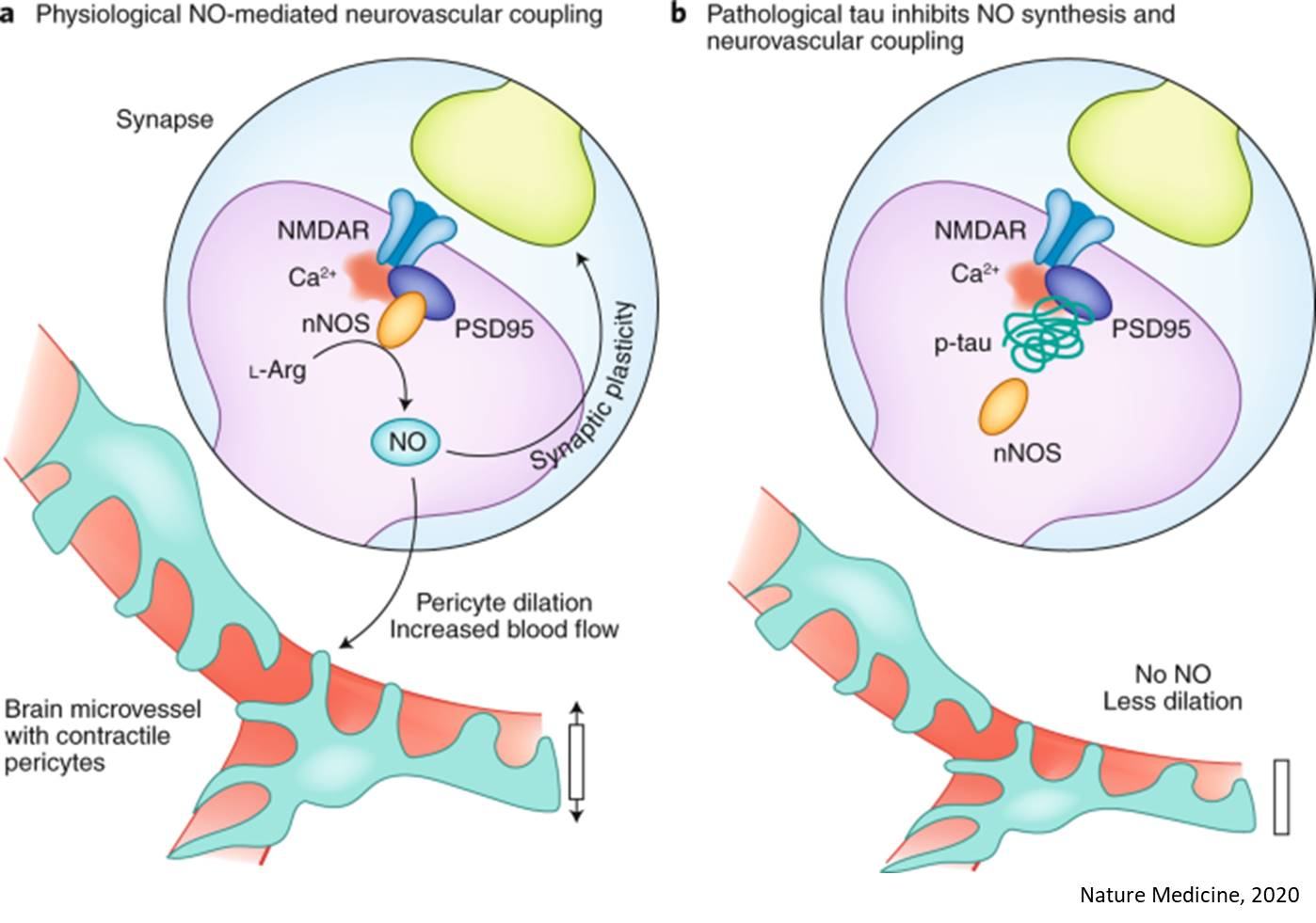 NO problem from tau long before neurodegeneration