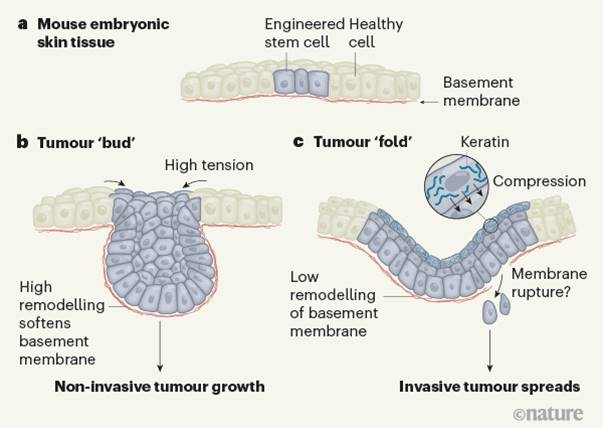 How mechanical forces nudge tumors toward malignancy