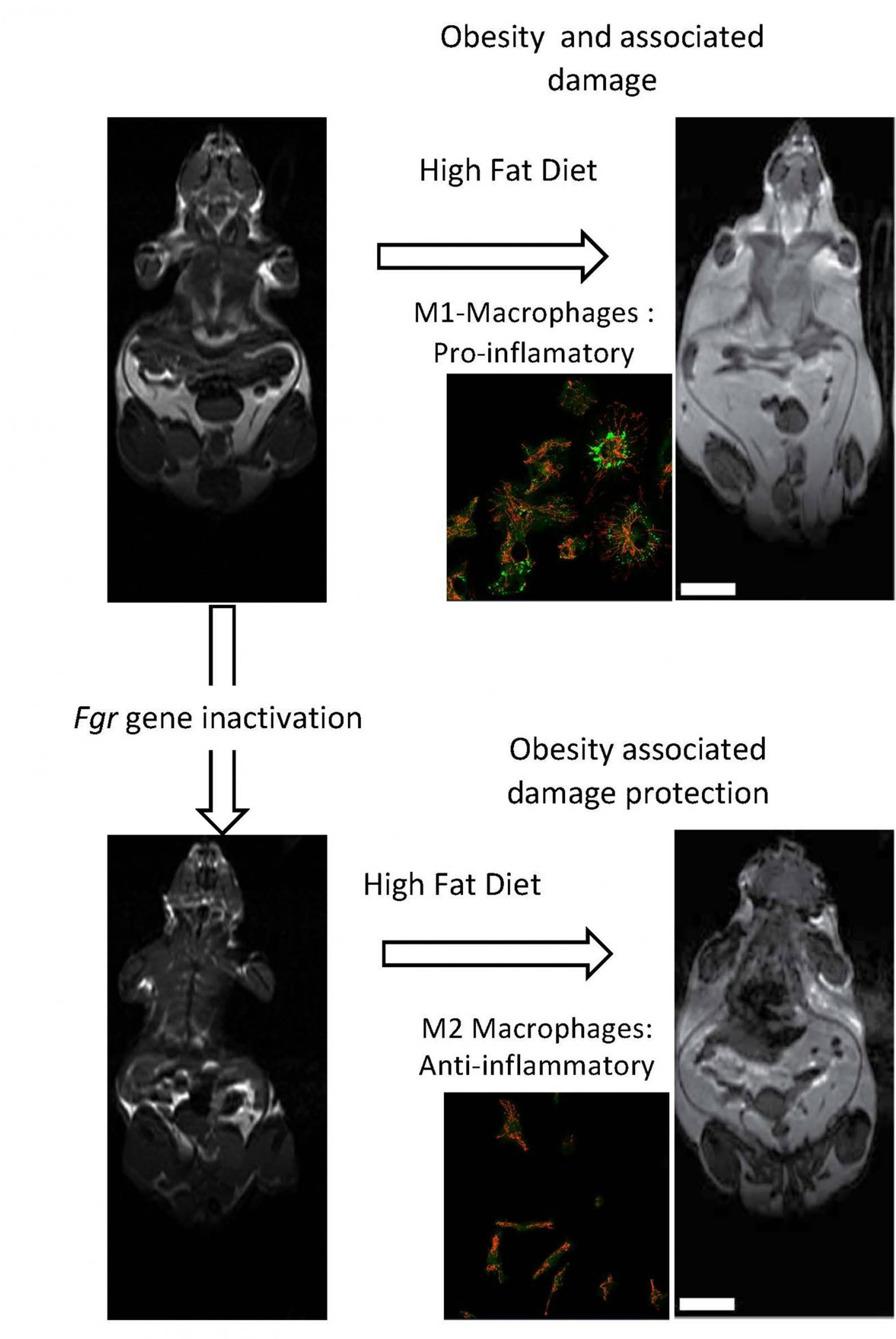 How immune cells regulate obesity