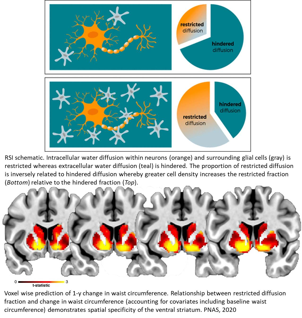 Nucleus accumbens cytoarchitecture predicts weight gain in children