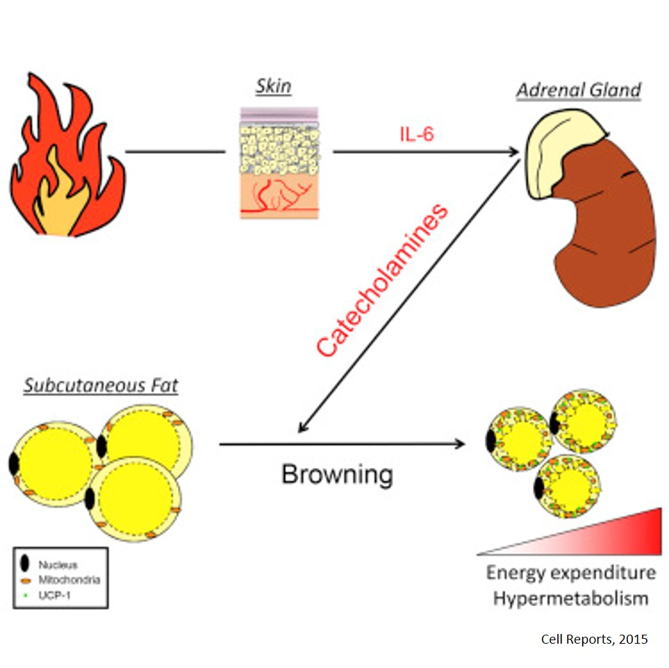 Burn Induces Browning of the Subcutaneous White Adipose Tissue