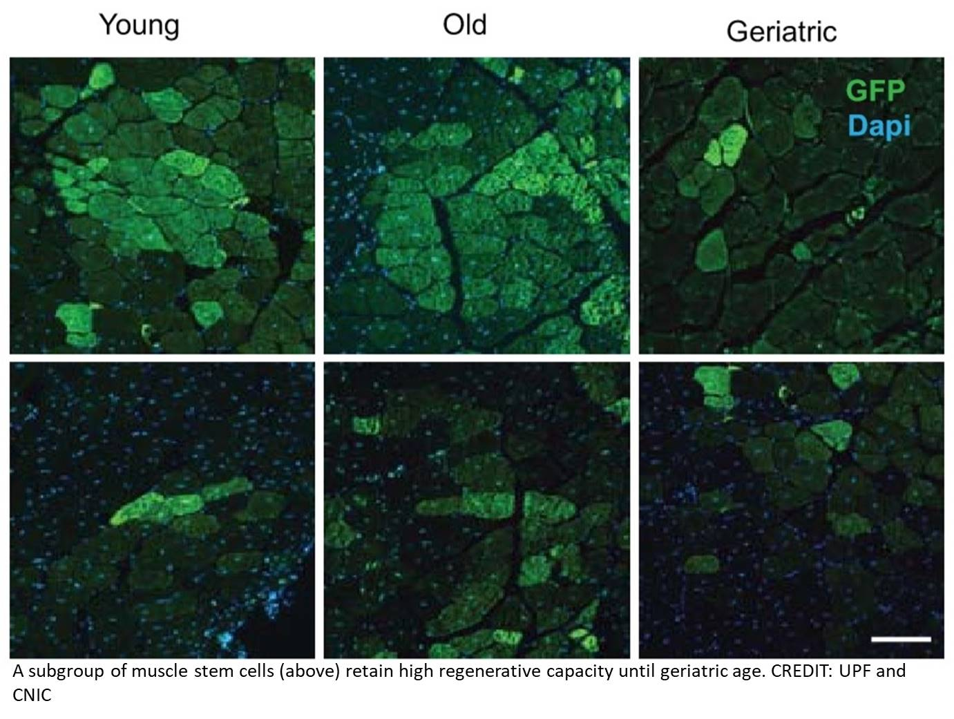 Stem cells that resists ageing and maintains muscle regeneration identified!