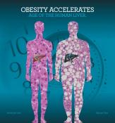 Obesity Liver