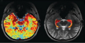 New neuroimaging method better identifies epileptic lesions