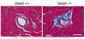 Endothelial Gata5 transcription factor regulates blood pressure