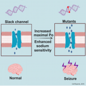 Mechanism of slack channel mutants induced epilepsy