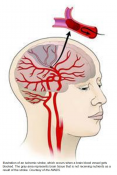 Diabetes drug may prevent recurring strokes