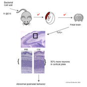 Postnatal cognitive disorder mechanism following maternal infection