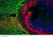 Spinal cord regeneration might actually be helped by glial scar tissue
