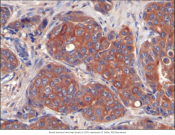 Breast cancer tumor growth is dependent on lipid availability