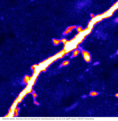 Hunger' neurons in the brain are regulated by protein activated during fasting