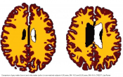 Obesity associated with increased brain-age from mid-life