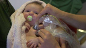 Laser to help premature babies